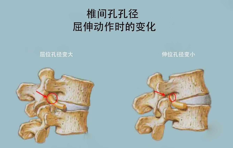 椎间孔孔径在屈伸时的变化
