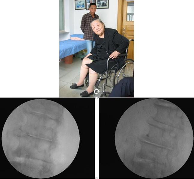 退行性变、腰椎管狭窄的病例